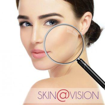 vignette Diagnostic de peau Skin Vision